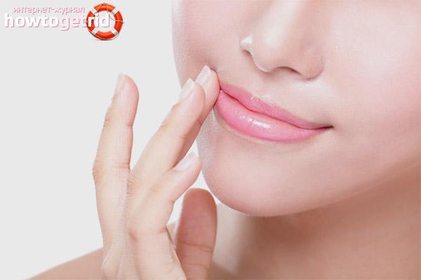 Трещины в уголках губ