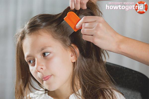 Как вывести вшей и гнид у ребенка