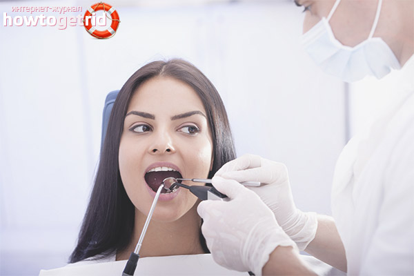 Удаление зубов во время беременности